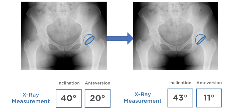 Xray pictures of hip replacement joints to show differences in inclination and anteversion.