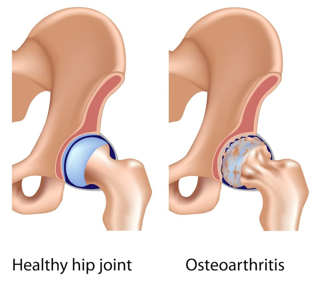Osteoarthritis in the hip is a sign it's time for hip replacement.