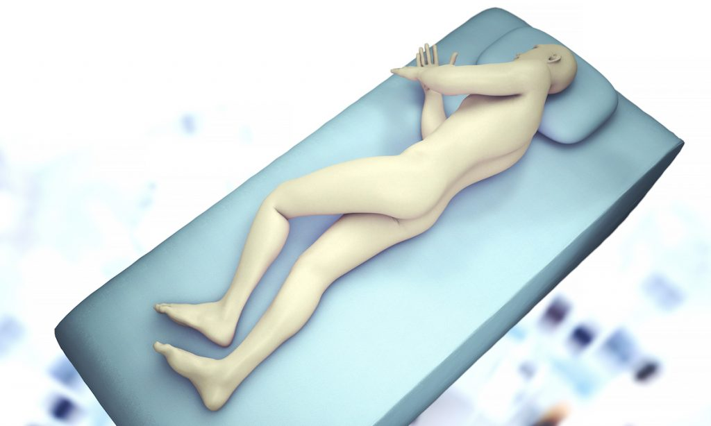 3D illustration showing a patient lying on their side